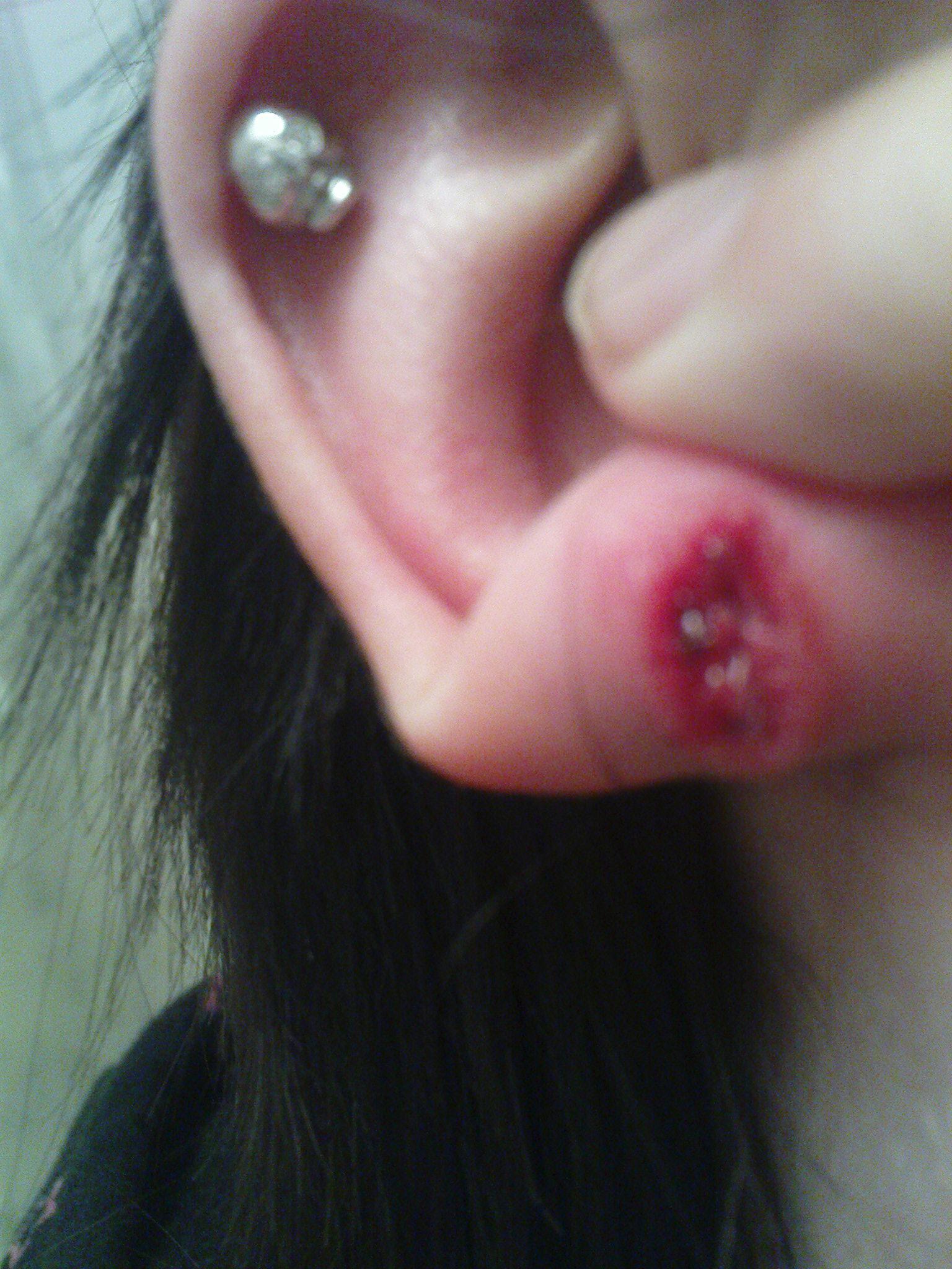 infektion i öronhål