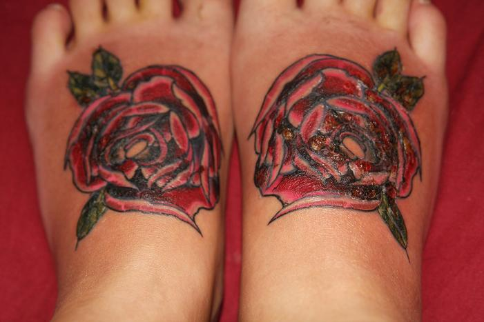 infektion tatuering behandling