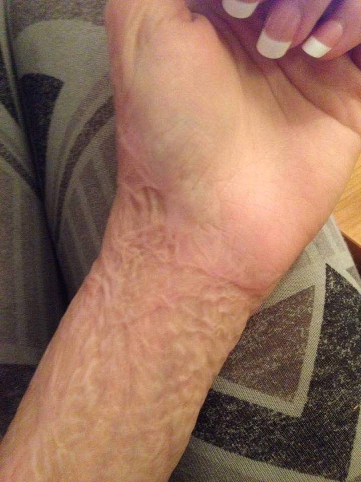 Tatuera över ärr